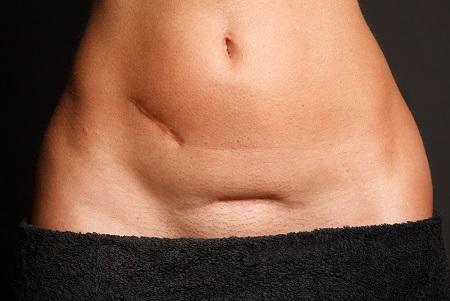 Bagaimana Kista Dapat Terbentuk Merawat Organ Feminin